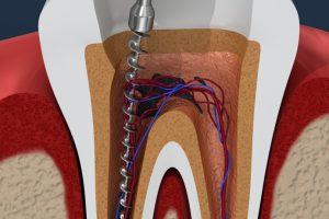 holte-tandlaege-rodbehandling
