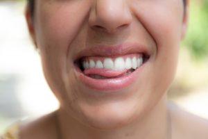 Kvinde med en tandprotese lavet hos en klinisk tandteknikker